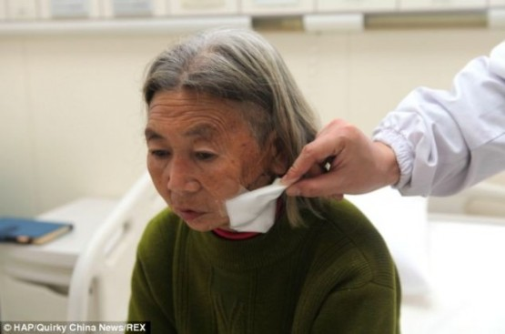 Невероятно - врачи нашли в лице пенсионерки 12-сантиметровую бамбуковую палку